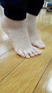足指,外反母趾,浮き指,足底筋膜炎,足の悩み,足のトラブル,ハンマートゥ,足の小指,足の小指の爪がない,足のむくみ,むくむ,冷え