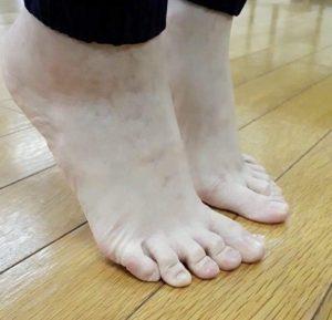 ウォーキングレッスン,ウォーキング,歩き方,足指,外反母趾,浮き指,足底筋膜炎,足の悩み,足のトラブル,ハンマートゥ,足の小指,足の小指の爪がない,足のむくみ,むくむ,冷え